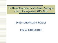 Le Remplacement Valvulaire Aortique chez l'Octogénaire (RVAO)
